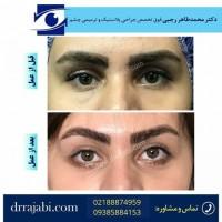 دکتر محمدطاهر رجبی جراحی و متخصص چشم.