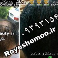 رویش مجدد مو و قطع ریزش مو بصورت گیاهی