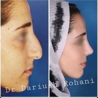 خدمات مطب دکتر داریوش روحانی متخصص گوش و حلق و بینی