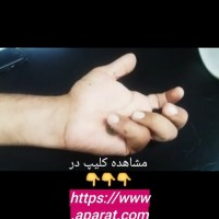 خدمات کاردرمانی در منزل در تمام نقاط تهران