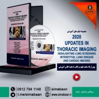 02Updates in Thoracic Imaging  Lung Screening
